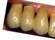 tandlæge johnny lynge
